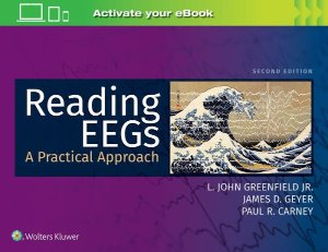 Reading EEGs: A Practical Approach,2/e