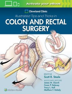 leveland Clinic Illustrated Tips and Tricks in Colon and Rectal Surgery,1/e