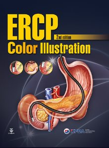 ERCP Color Illustration ,2/판
