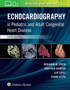Echocardiography in Pediatric and Adult Congenital Heart Disease,3/e