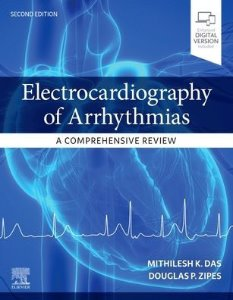 Electrocardiography of Arrhythmias: A Comprehensive Review,2/e