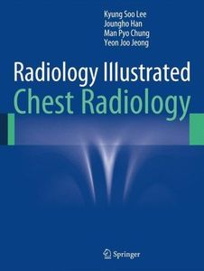 Radiology Illustrated:Chest Radiology