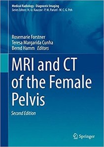 MRI and CT of the Female Pelvis,2/e