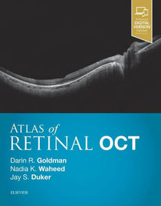 Atlas of Retinal OCT: Optical Coherence Tomography