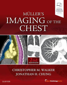 Muller's Imaging of the Chest,2/e