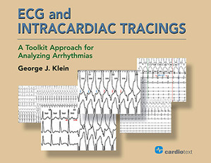 ECG and Intracardiac Tracings: A Toolkit Approach for Analyzing Arrhythmias