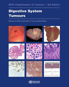 WHO Classification of Tumours of the Digestive System,5/e