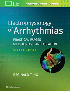 Electrophysiology of Arrhythmias: Practical Images for Diagnosis and Ablation ,2/e