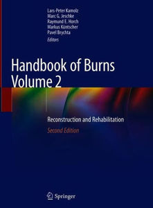 Handbook of Burns Volume 2: Reconstruction and Rehabilitation ,2/e